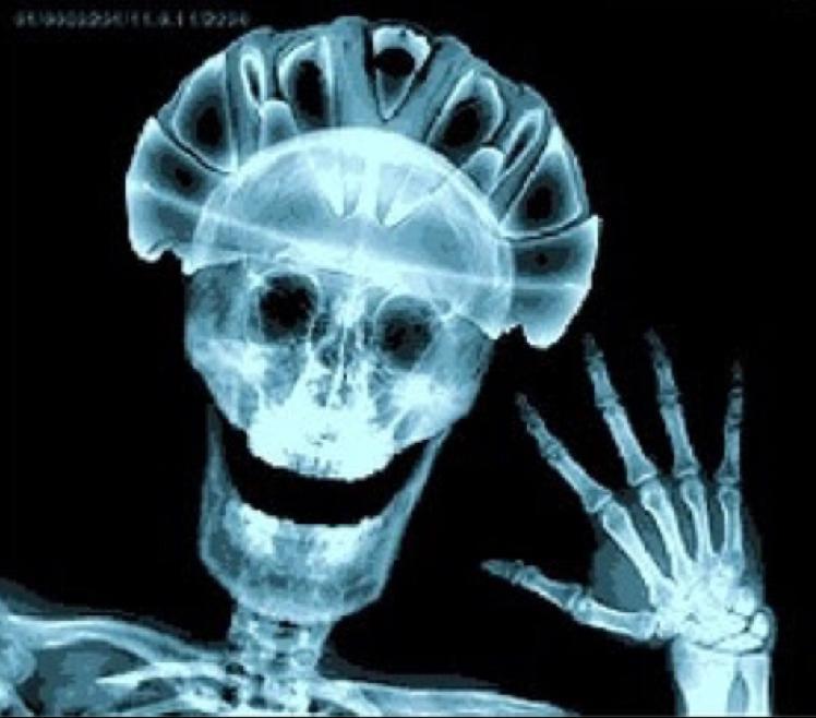 Чеченские приколы, смешные рентген картинки